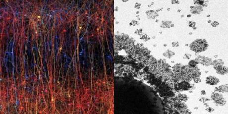 Il nostro cervello mostra un'architettura sempre più complessa